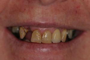 Dental Bridges Sunshine Coast